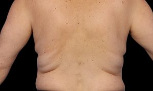 Before CoolSculpting
