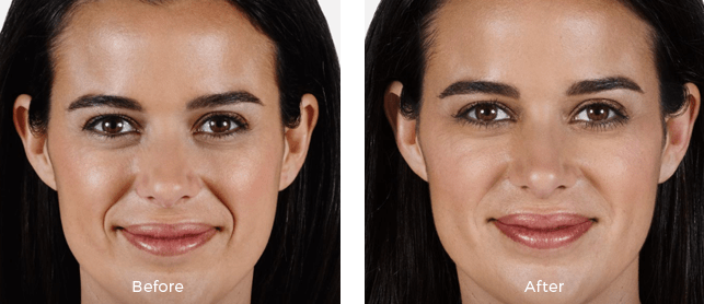 Juvederm Volbella before and after results