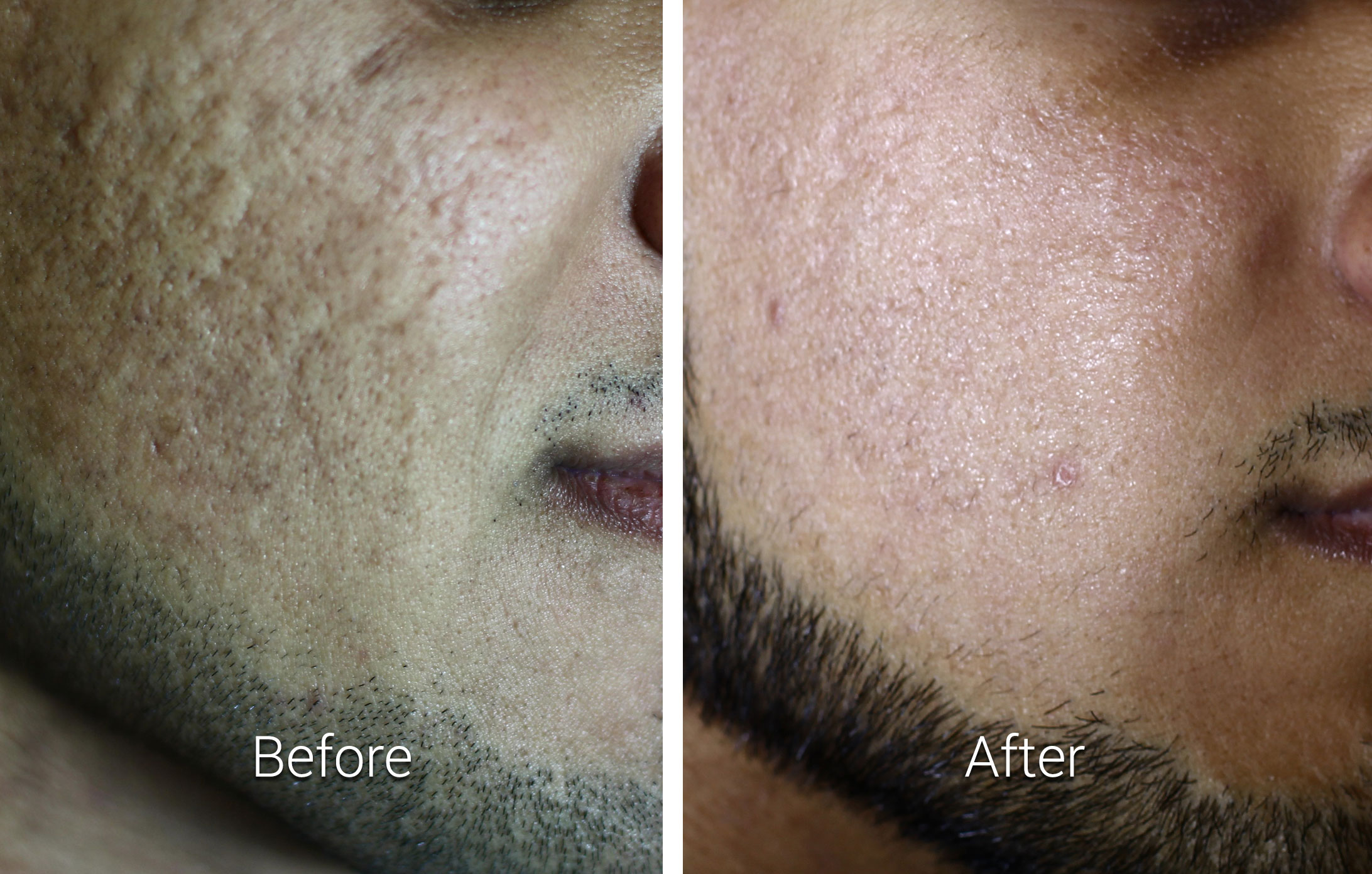 CO2RE Fractional CO2 Resurfacing System results