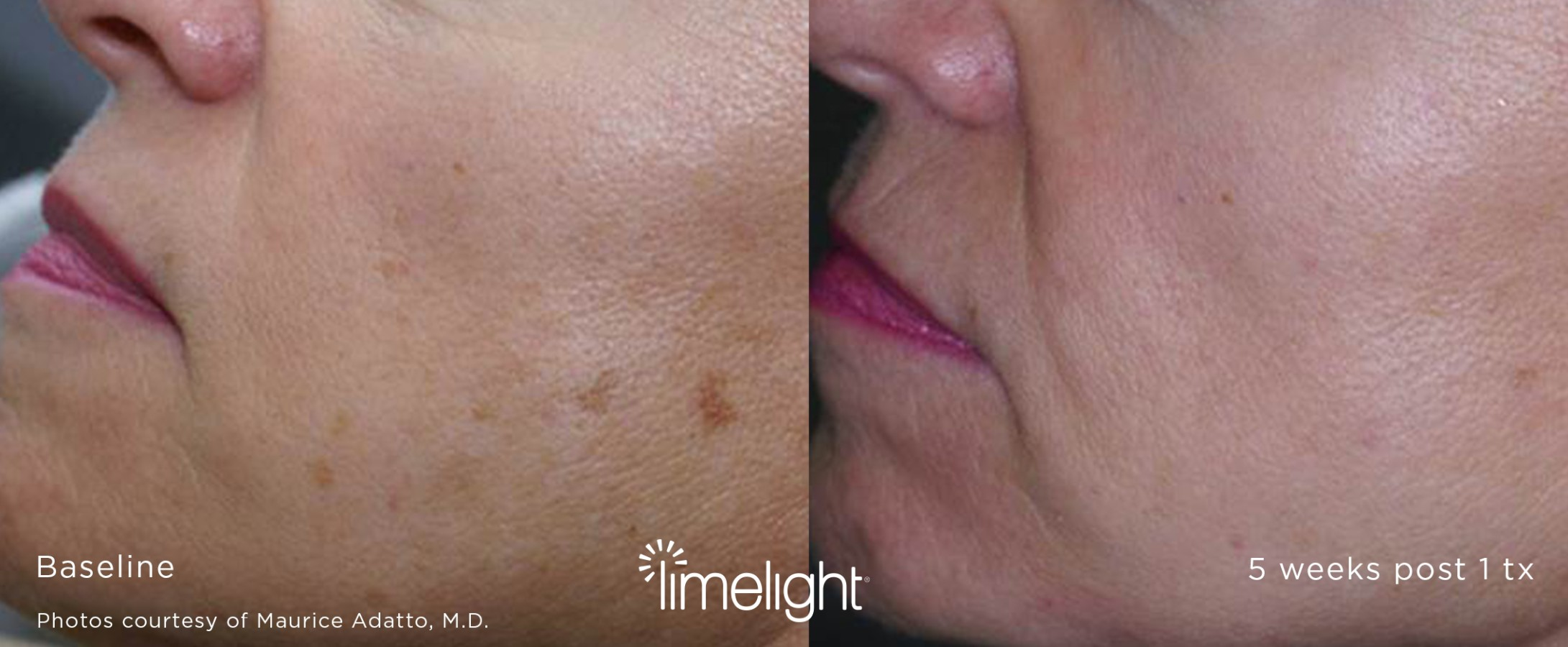 Limelight facial before and after results