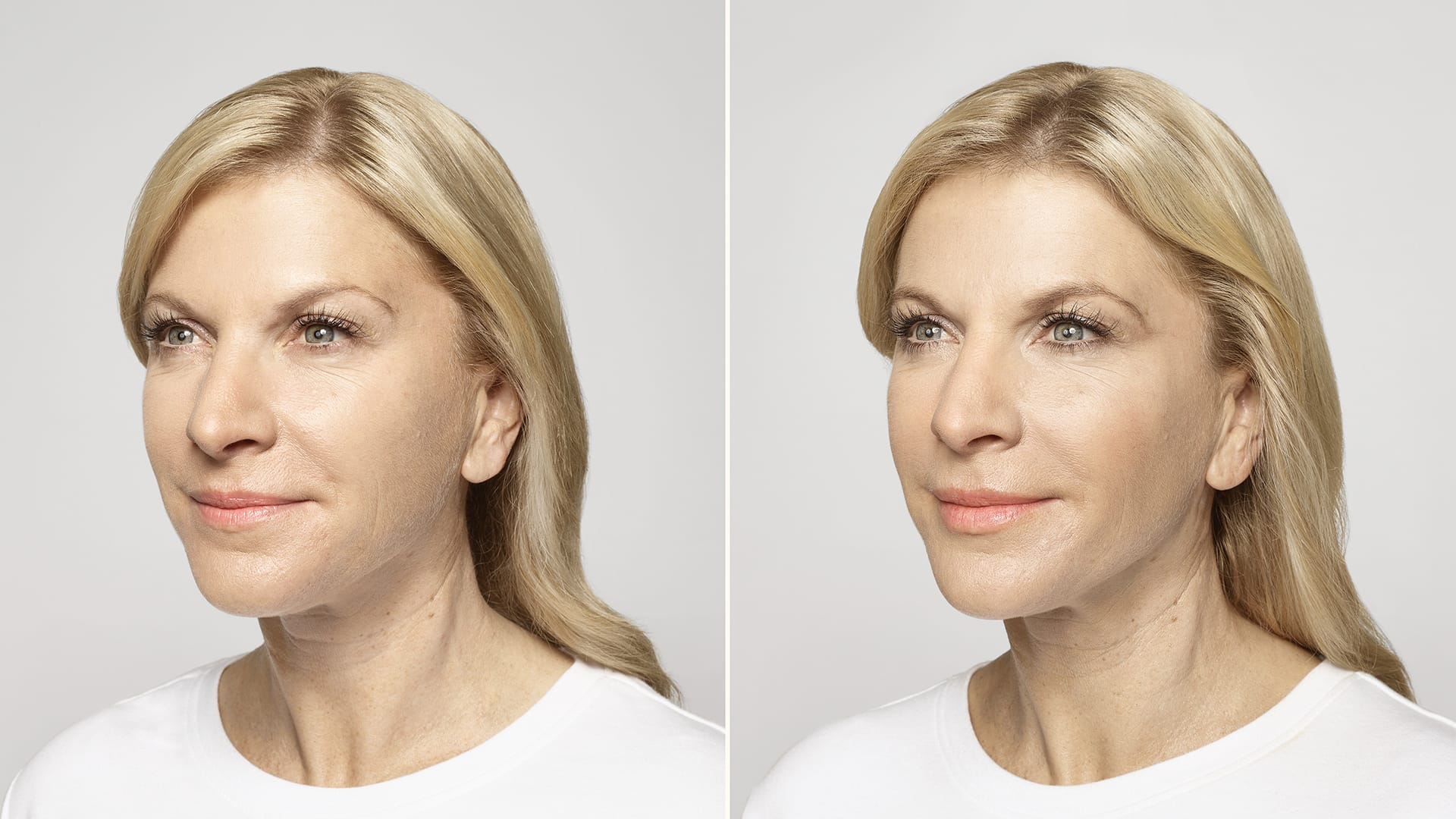 Restylane Lyft before and after results