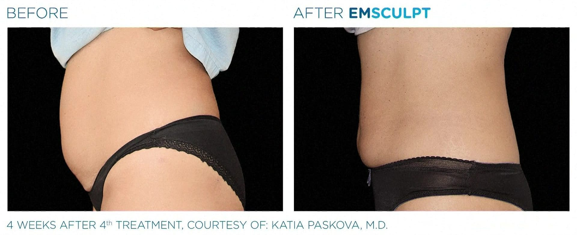 EMSCULPT before and after photos